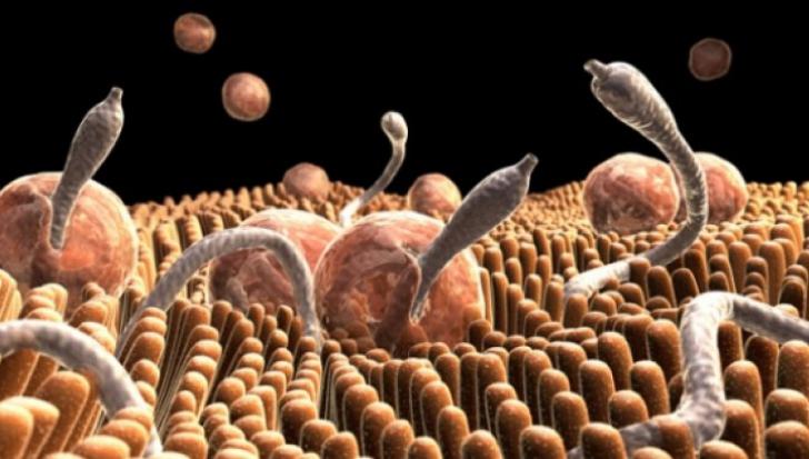 Semne ale prezenței viermilor în corpul uman