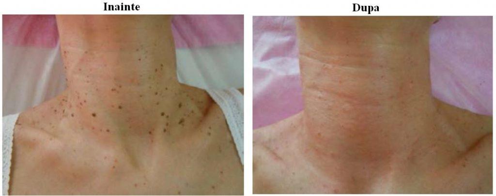 De ce poate apărea o umflătură dureroasă pe fesă sub piele? - Lipom