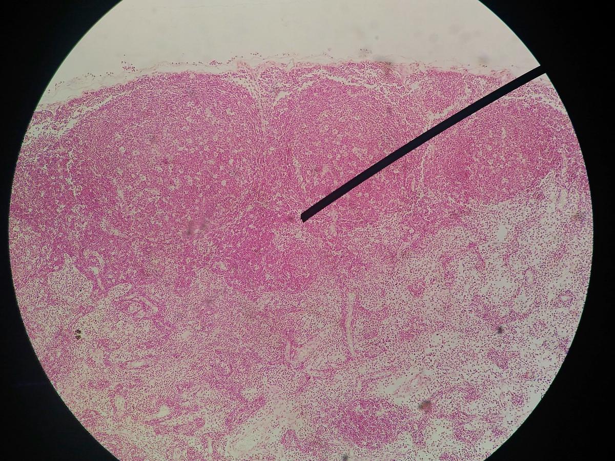 tablete masticabile de vierme îndepărtați verucile genitale din uretra
