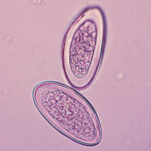 enterobius vermicularis egg size paraziți în urină la om