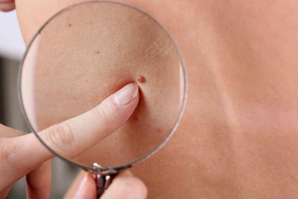 cum este tratată giardiaza cancer de piele la copii simptome