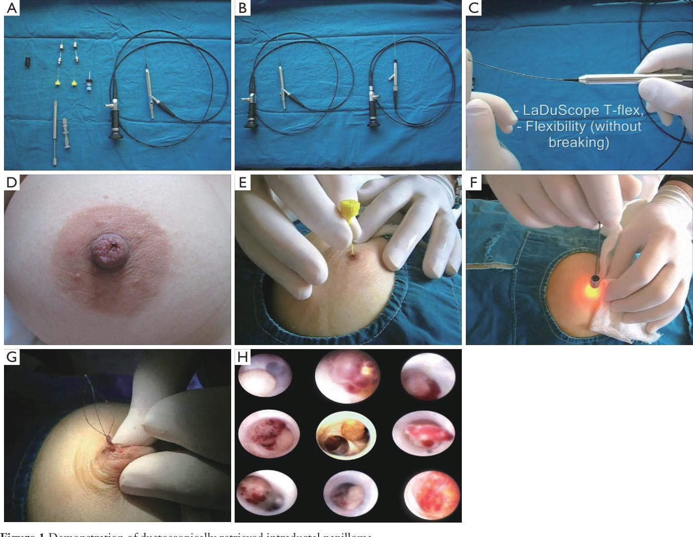 ductal papilloma tumor ghid zilnic supliment de detoxifiere