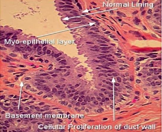 Papillomatous epidermal hyperplasia, Înțelesul