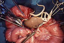 definition of helminth papilloma a cellule squamose della lingua