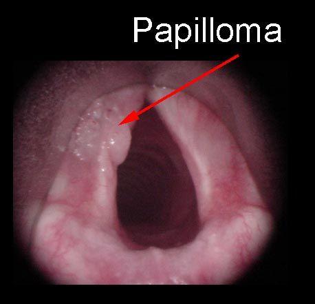 helmint aer rău gastric cancer new treatment
