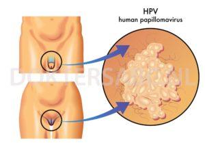 Hpv virus mannen behandeling, Hpv virus mannen behandeling