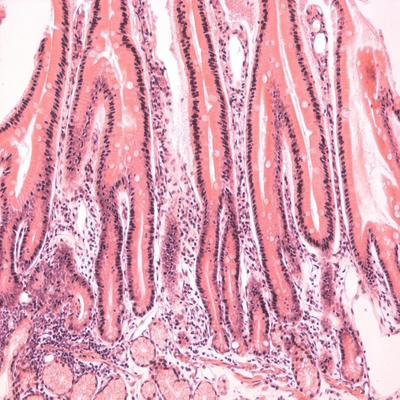 ovarian cancer treatments detoxifierea organismului intr o zi