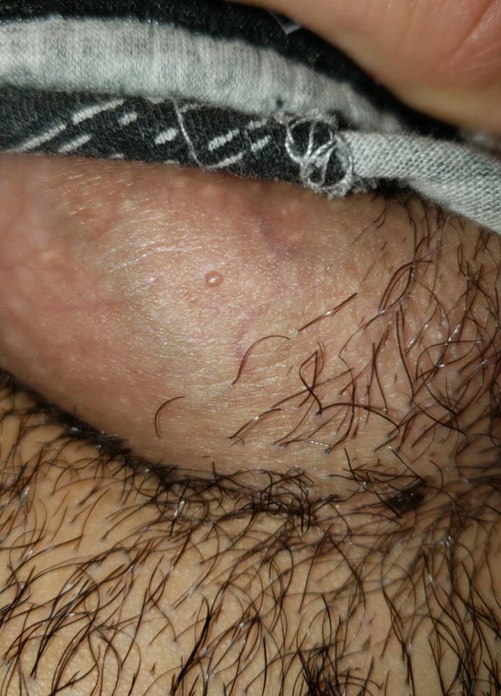 hpv genital verruca zoologie de tenă