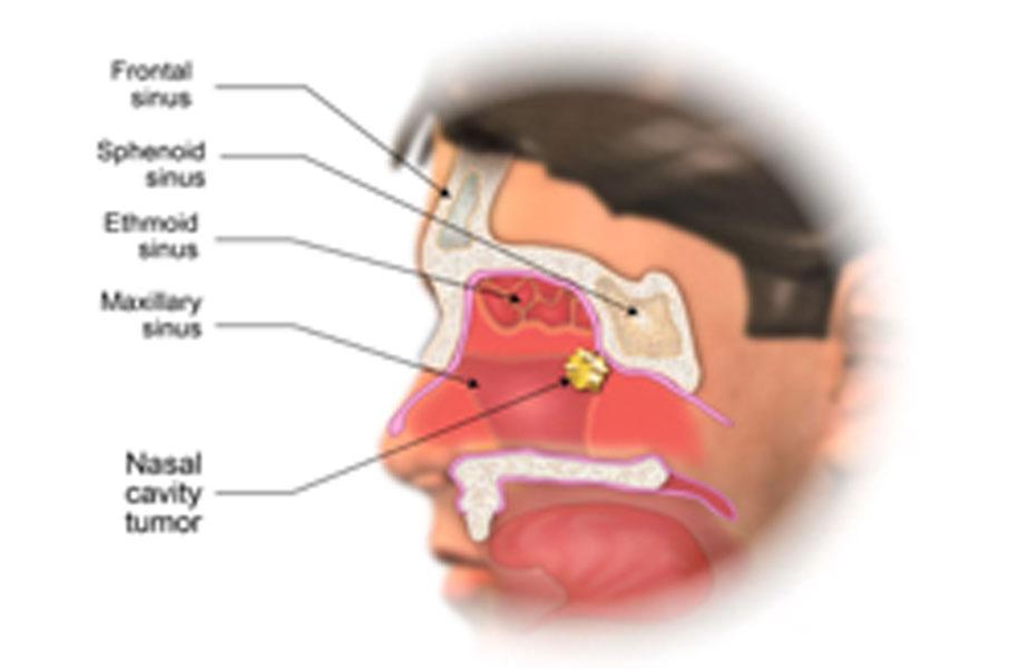 hpv nasal cavity