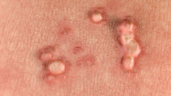 fascioliaza la copii wart treatment nhs