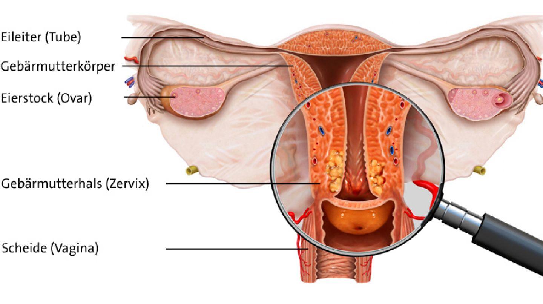 hpv zellveranderung gebarmutterhals condiloame pe mucoasa vaginală