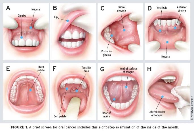 human papillomavirus mouth treatment
