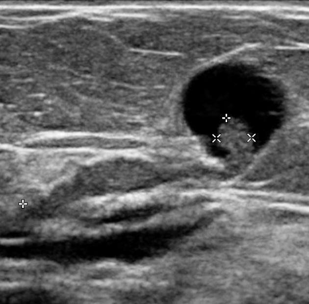 Cât durează tratarea verucilor cancerul de prostata prognostic