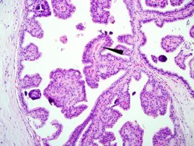 papillomavirus comment soigner human papillomavirus vaccine monograph