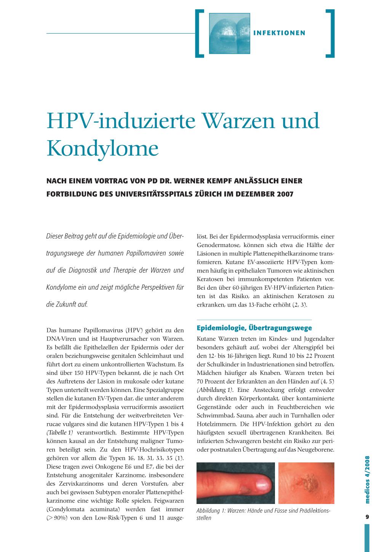 kondylome hpv therapie mijloace pentru prevenirea și tratarea paraziților
