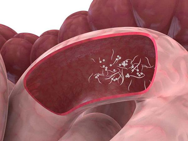 nasal papilloma nhs