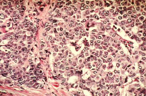 metastatic cancer nhs de ce viermii de pin sting scaunele?