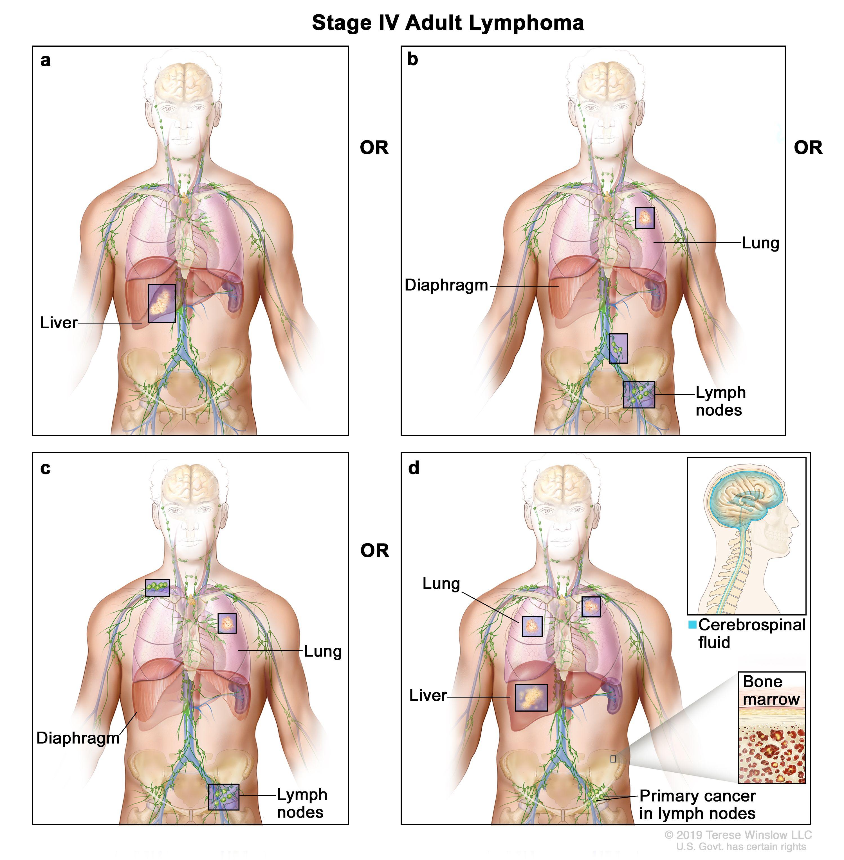 Asociatia bolnavilor cu limfom