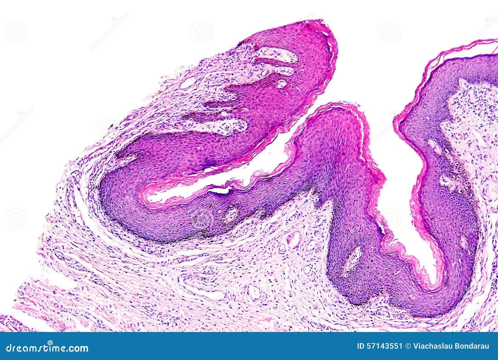tratamentul paraziților în gât crema papiloma hombre