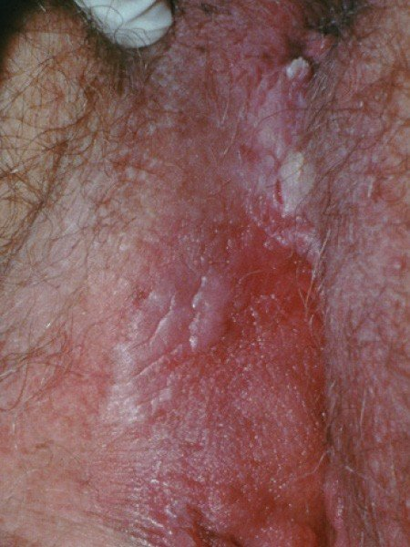mâncărime în anusul verucilor genitale)