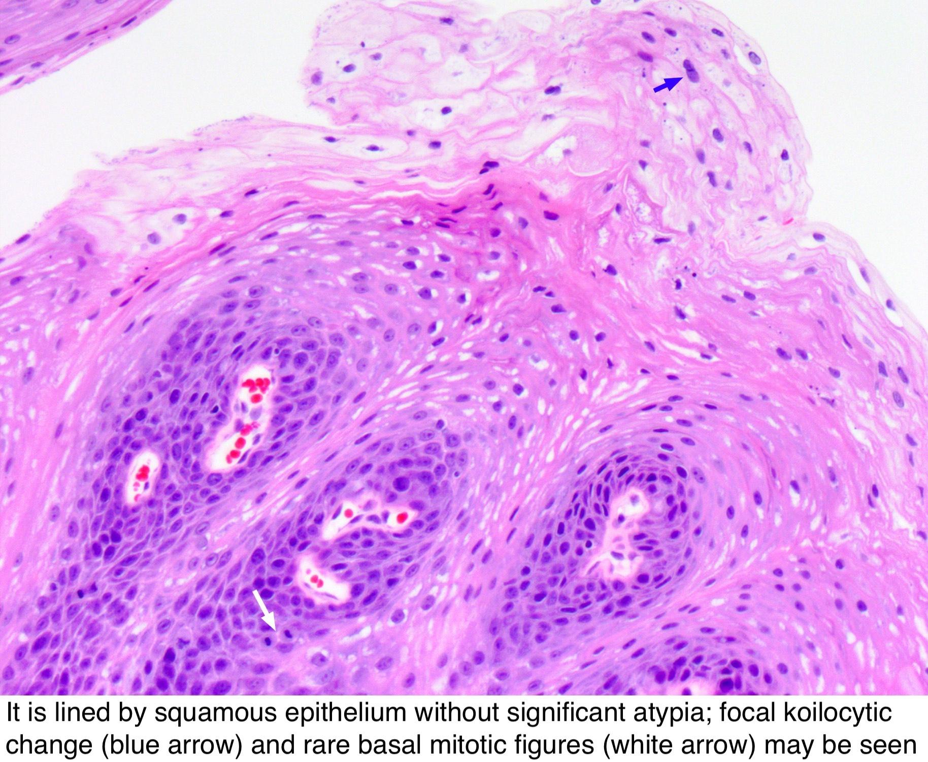 human papillomavirus infection facts pot apărea și infecții cu vierme