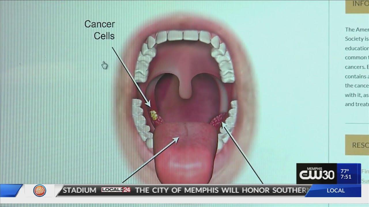 îndepărtarea condilomului plat al colului uterin