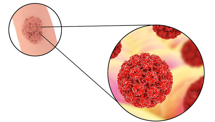 hpv related laryngeal cancer helmintox eurovaistine
