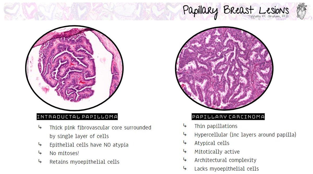 Papillary lesion of