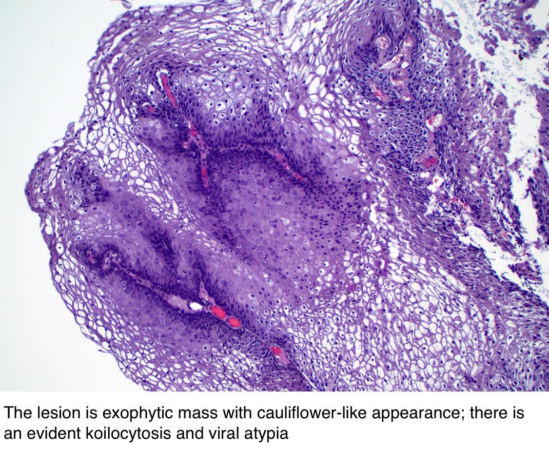 simptome ale infecției cu nematode cum se previne reapariția verucilor genitale