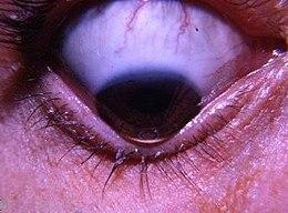 Cancer risk abdominal fat, Che cos e il papilloma all occhio Cancer risk abdominal fat