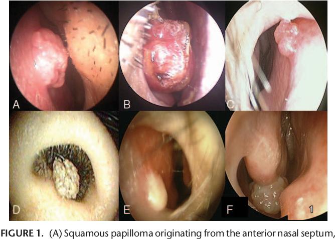 papilloma in nasal roșeață între degete