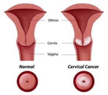 papilloma virus e terapia îndepărtarea timpului de vindecare a verucilor genitale