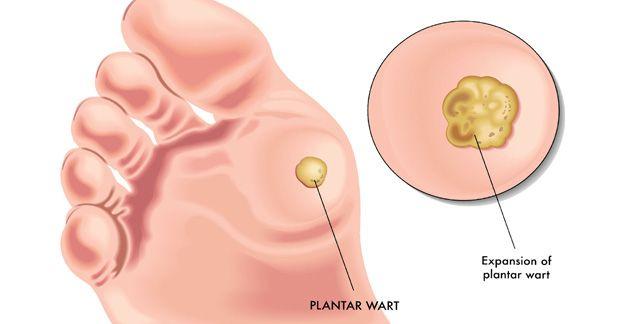 Infectia cu HPV (Human Papilloma Virus), Papillomavirus piscine