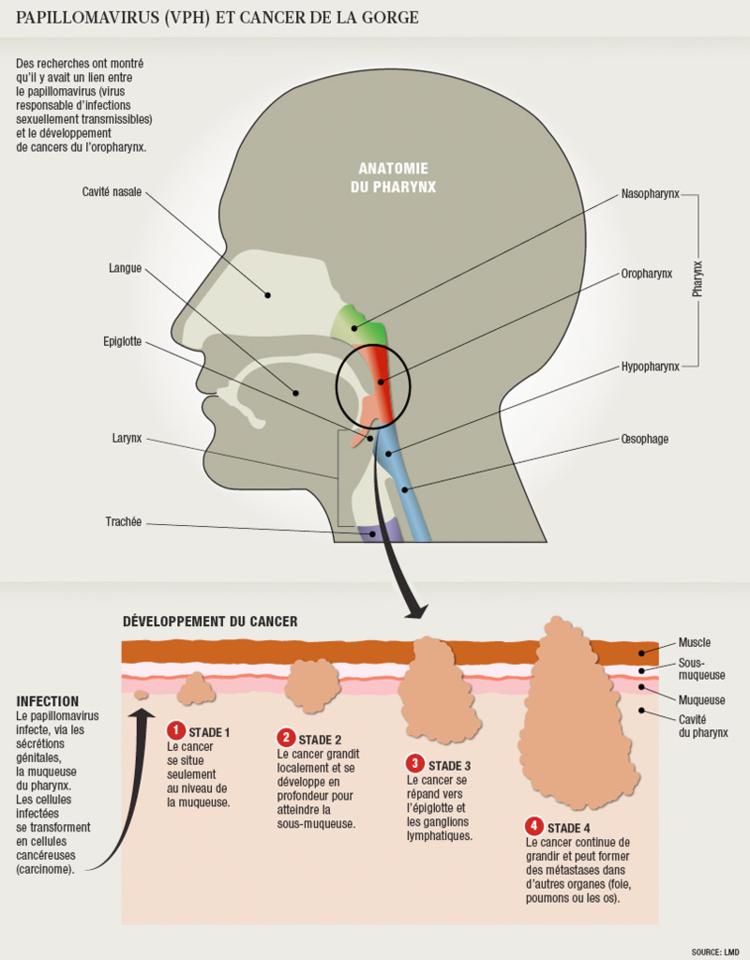 Papillomavirus et douleurs articulaires Papillomavirus urticaire