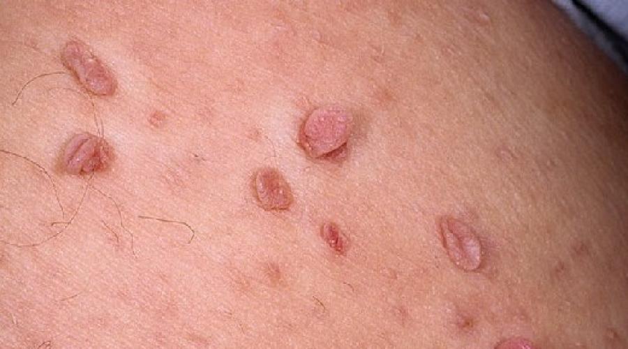 papiloame pe piele cauze și tratament