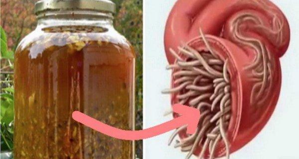 ce viermi se găsesc în corpul uman gastric cancer diagnosis