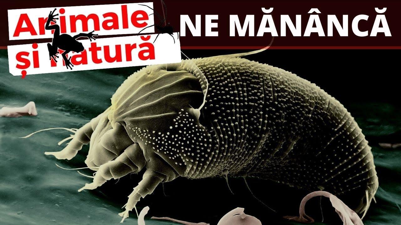 paraziti eozinofili