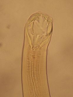 paraziti v lidske kuzi hpv body symptoms