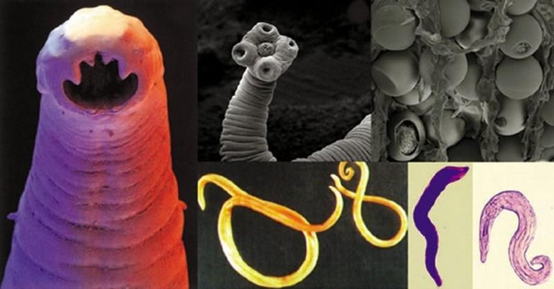 paraziti v jatrech