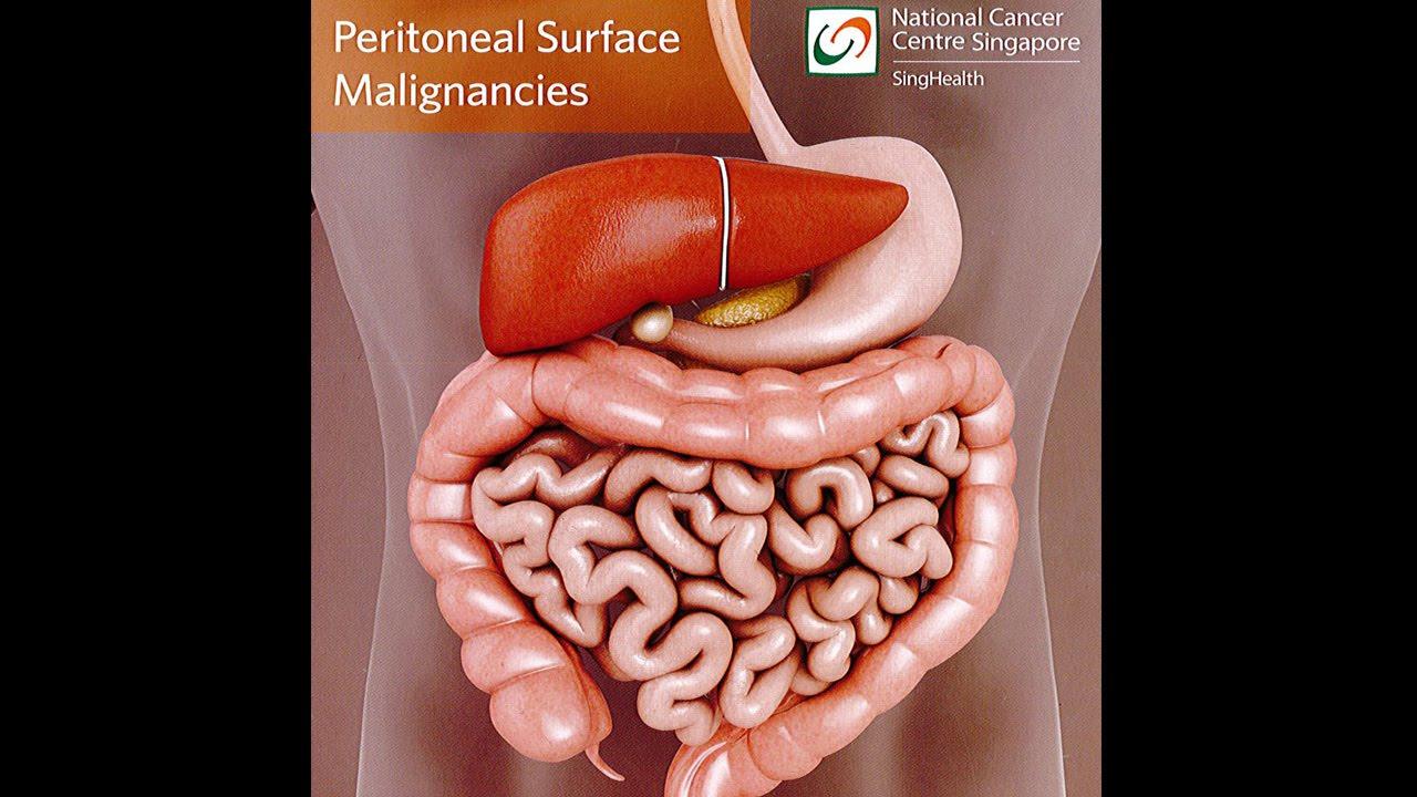 peritoneal cancer omentum