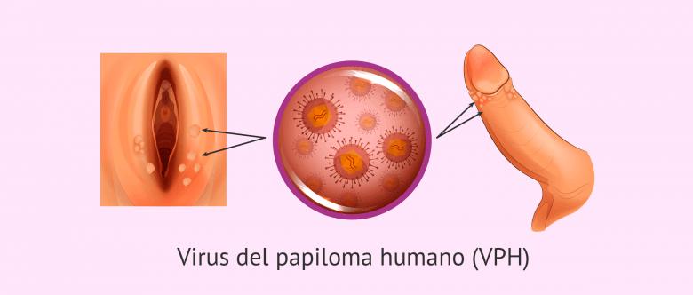 boala de helmint a tractului digestiv remediu eficient pentru recenziile copiilor de viermi