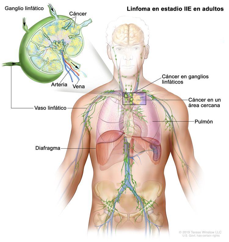 que es lymphoma cancer