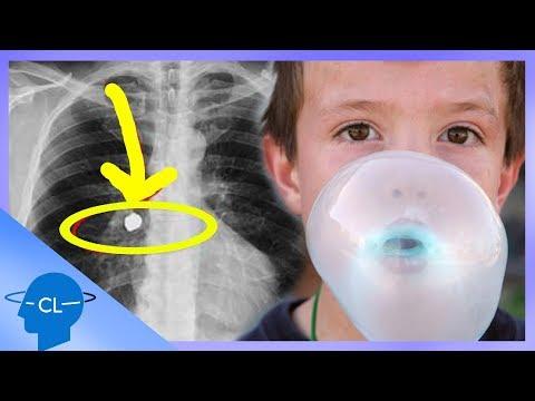 respirație de vierme ce pastile să ia din paraziții organismului
