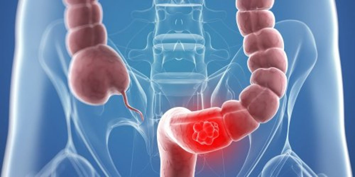 Cancerul de colon: cauze, simptome, tratament