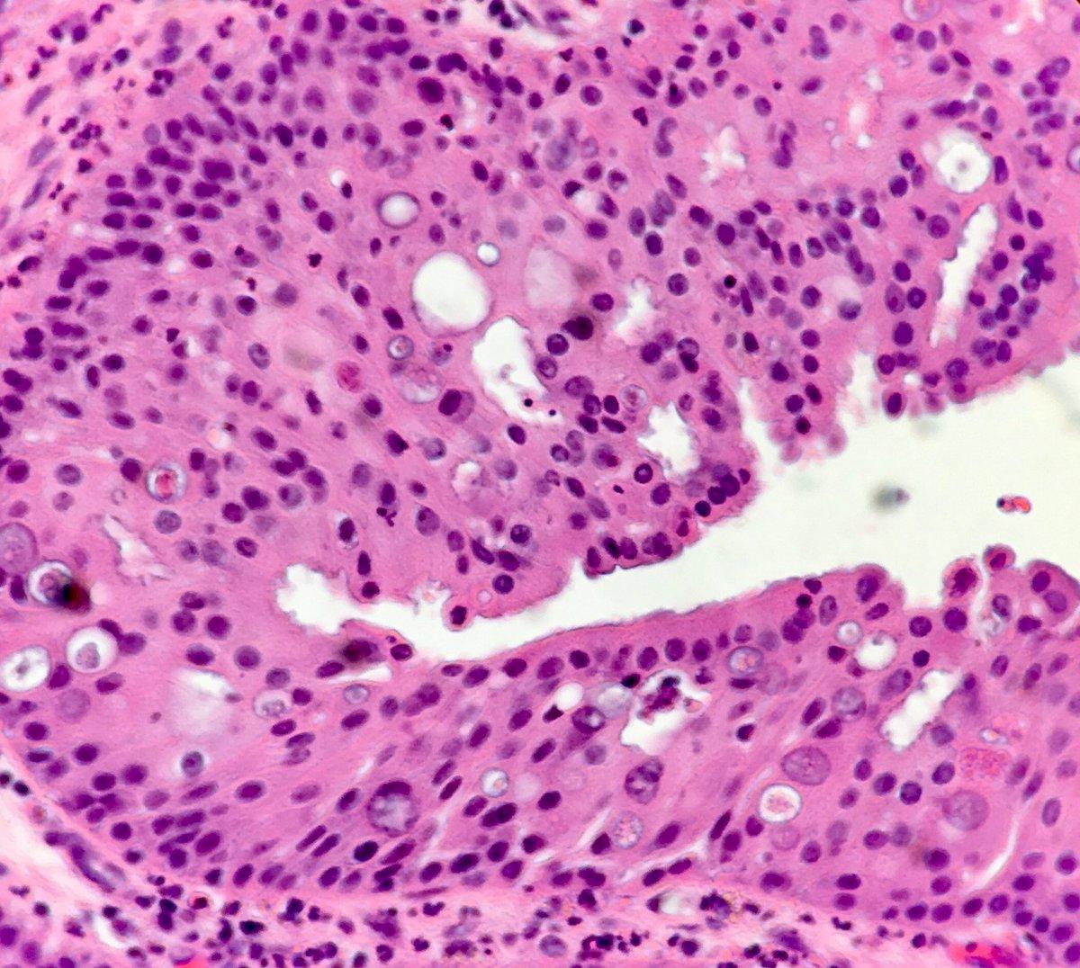 human papillomavirus hpv high risk dna detection