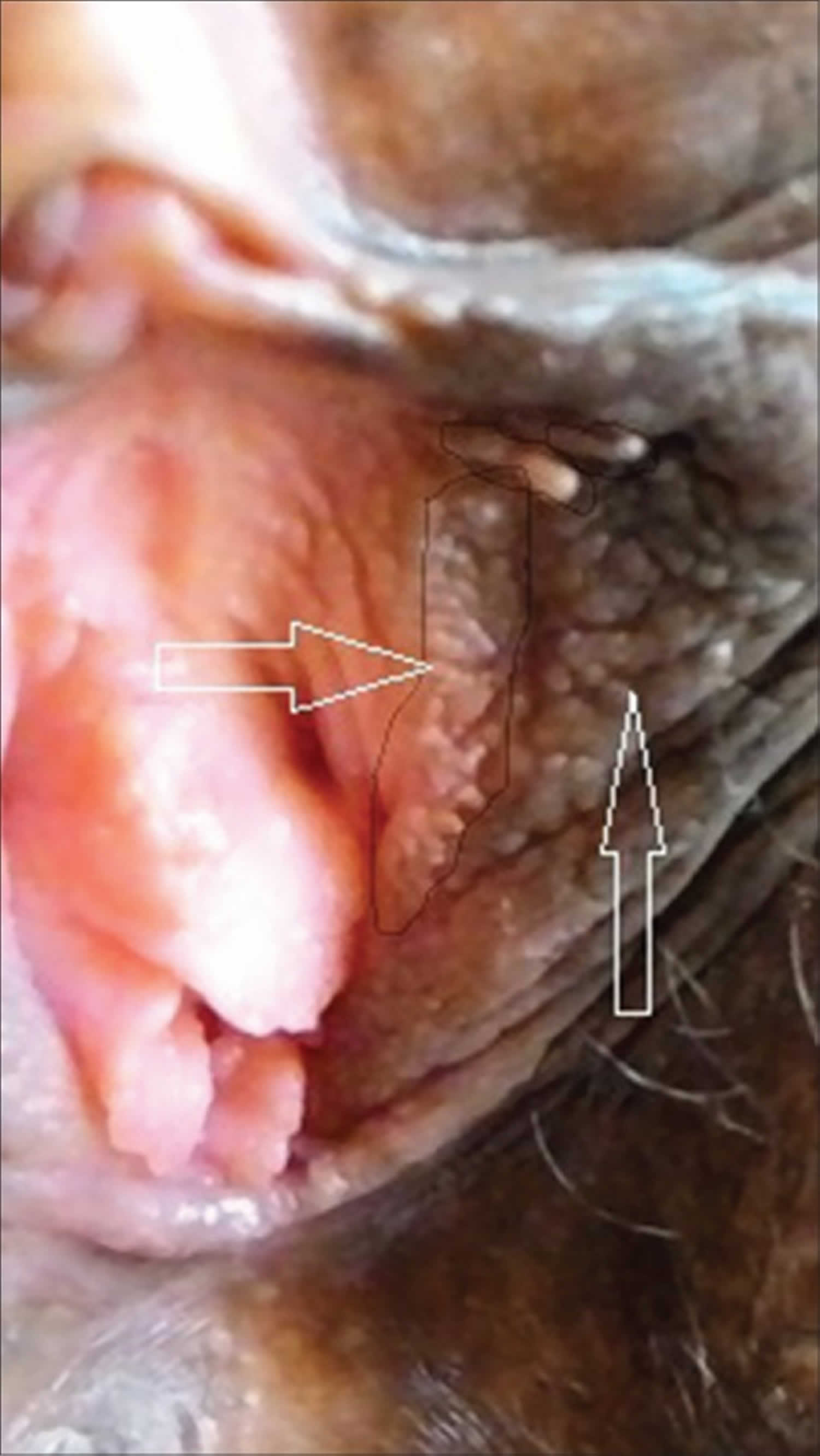 varicose lugansk care este operația de suprataxă mai bună