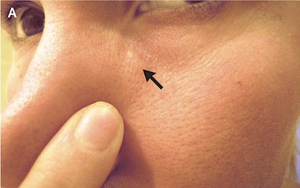 Verme oxiurus sintomas tratamento Tratamento verme parasita