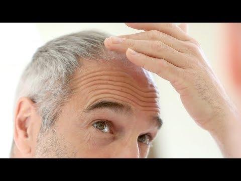 tratamentul alopeciei viermilor papillon zeugma pool suite buchen