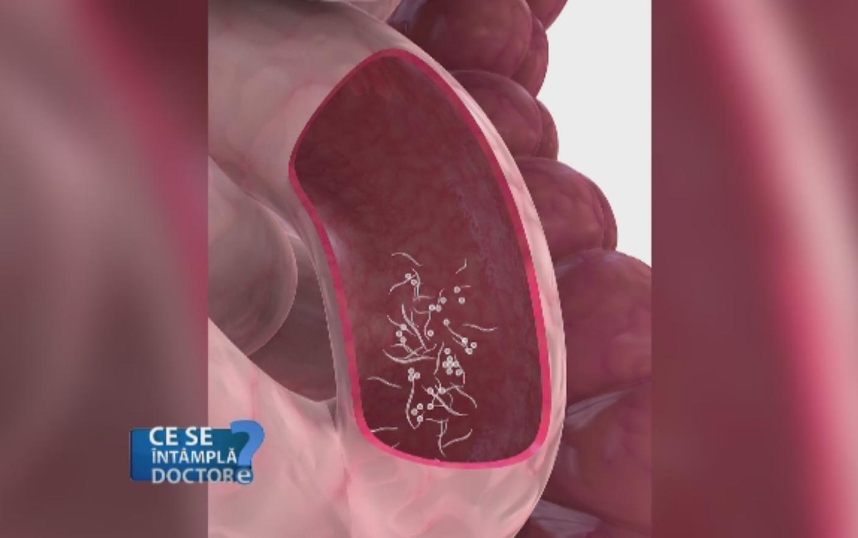 viermii rotunzi sunt un rezultat îndoielnic helminth infection function