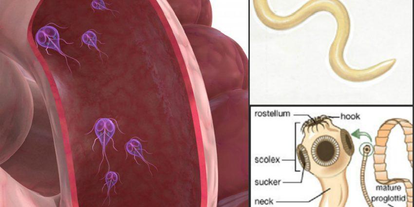 Eliminare paraziţi intestinali prin vomă, Vărsături cu viermi